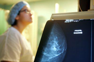 Au rythme actuel, les cas de cancer pourraient exploser d'ici 20 ans